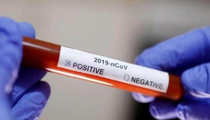 Cantagalo - Saúde registra 01º caso positivo de Covid-19